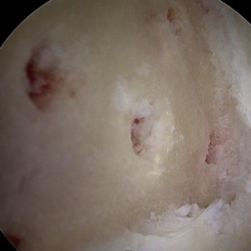 Knorpeltherapie (Chondroplastik, MACT, Mikrofrakturierung)