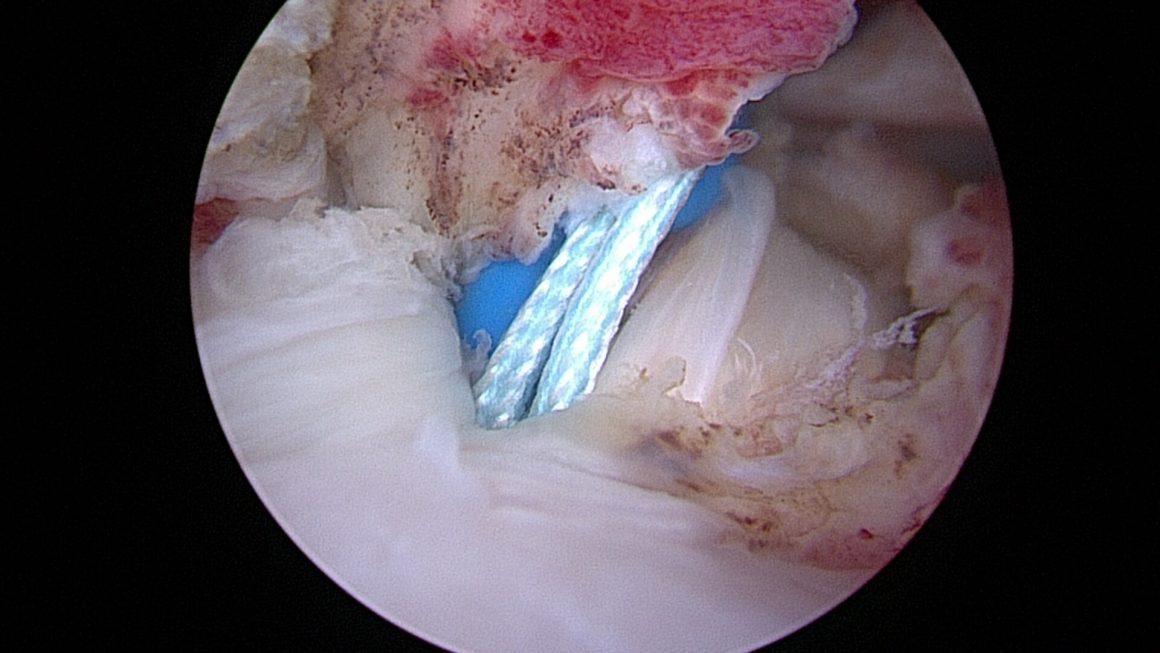 Tenotomie Tenodese
