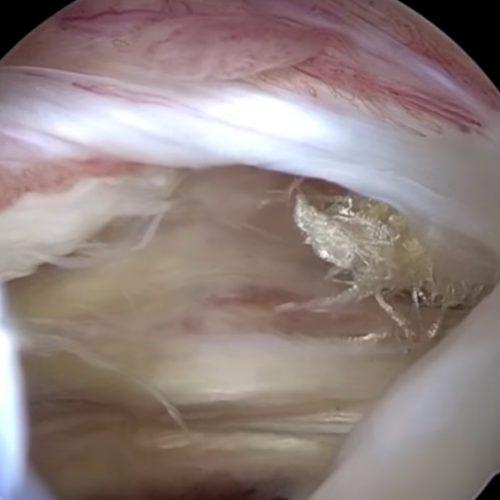 Arthroskopische Rekonstruktion der Rotatorenmanschette / Supraspinatussehne