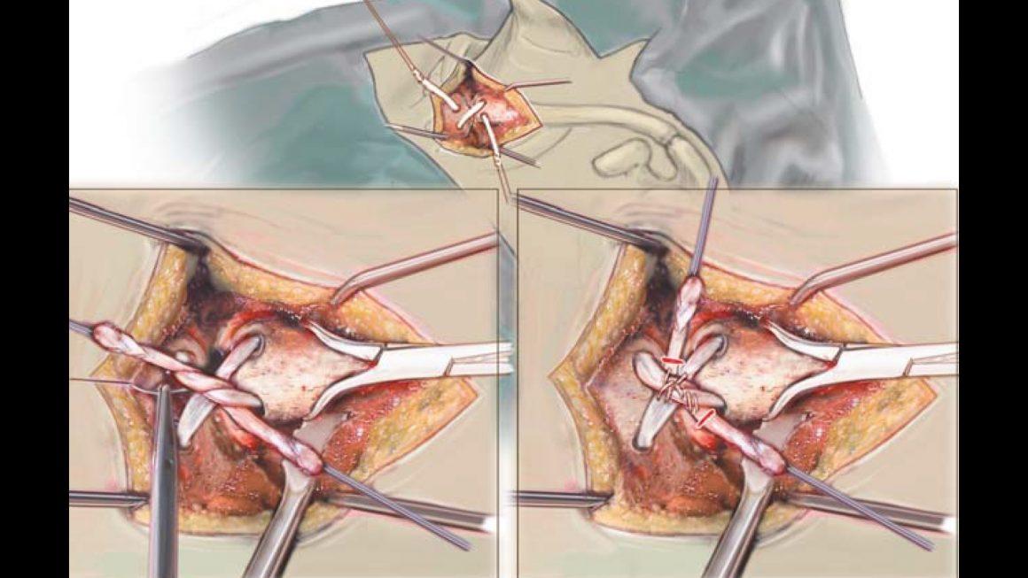 Stabilisierungsoperation bei Instabilität des Brustbein-Schlüsselbeingelenkes (SCG)