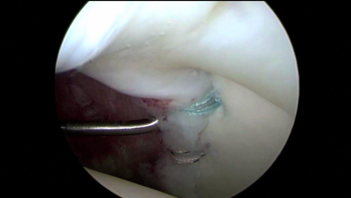 Arthroskopische Entfernung eines Ganglionzyste und Labrumrekonstruktion
