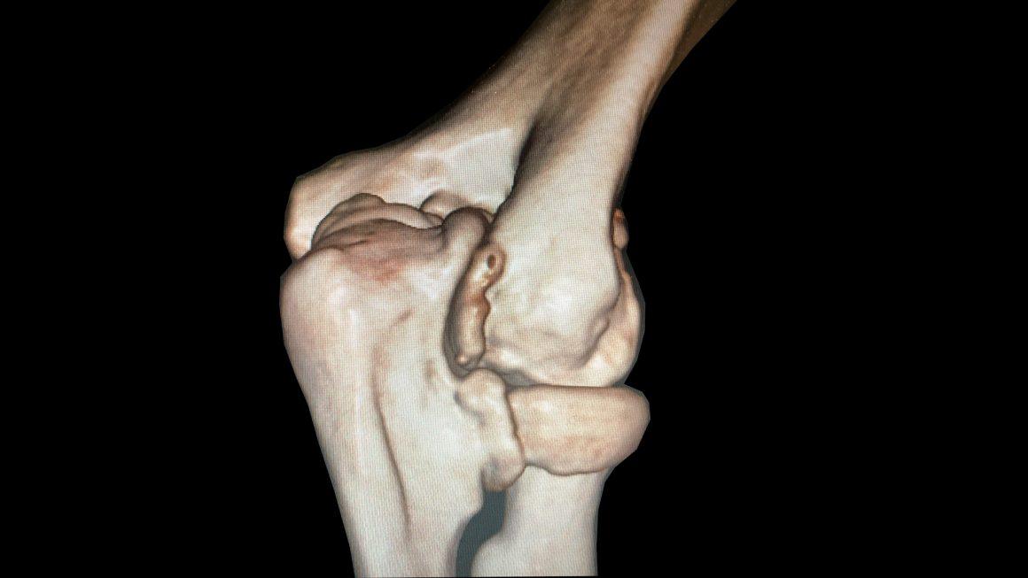 Arthrolyse bei Gelenksteife