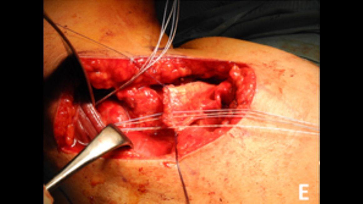 Muskeltransferoperation